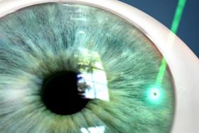 Yag Laser Περιφερική Ιριδοτομή