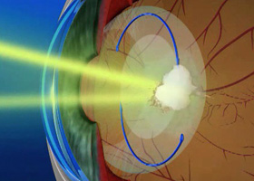Yag Laser Οπισθία Καψουλοτομή